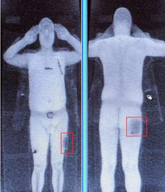 Раздевающие сканеры в аэропортах, пример 3